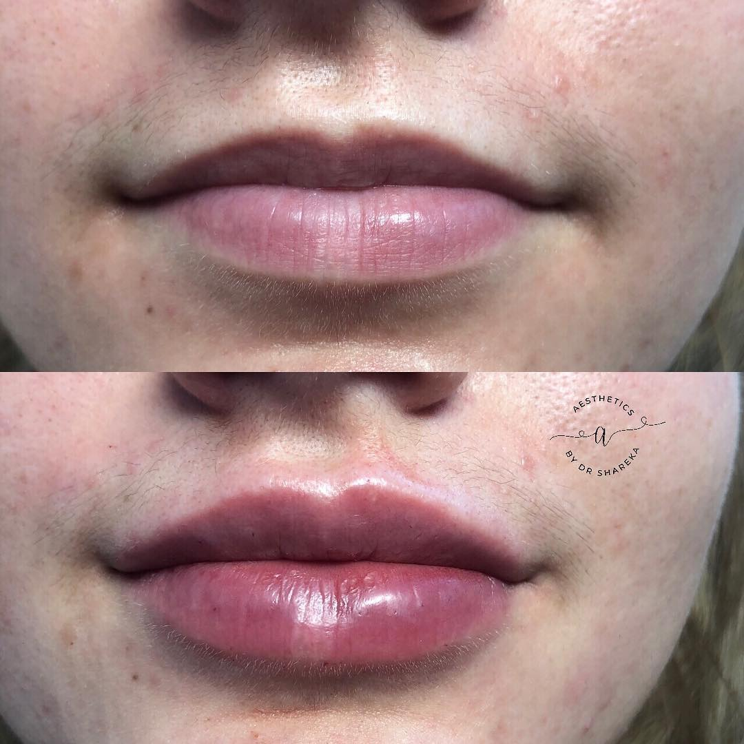 Lip Augmentation Treatments in Cheam | Aesthetics by Dr Shareka